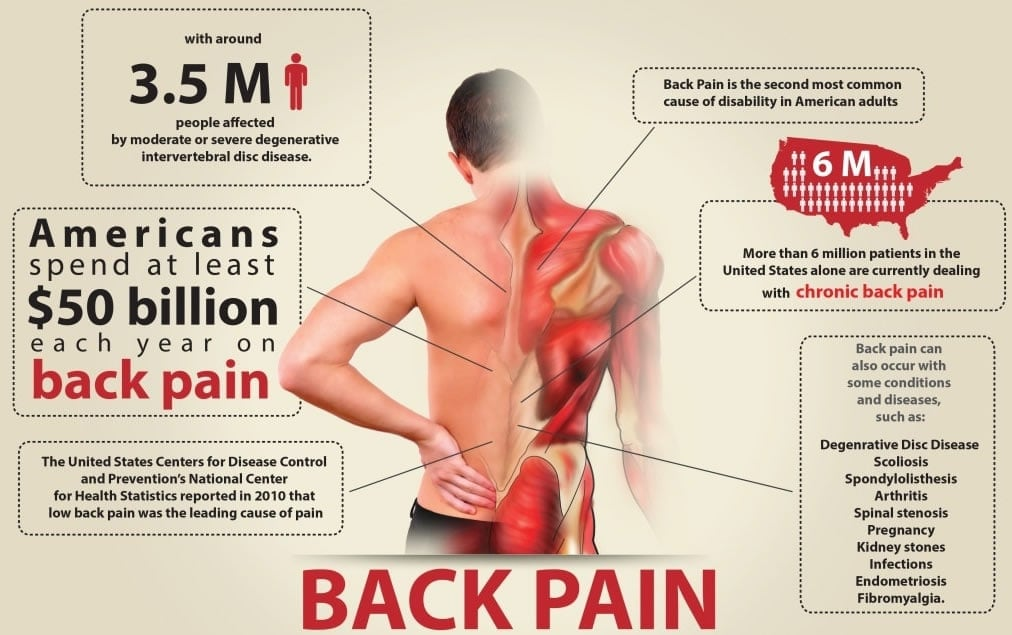 CBD for back pain