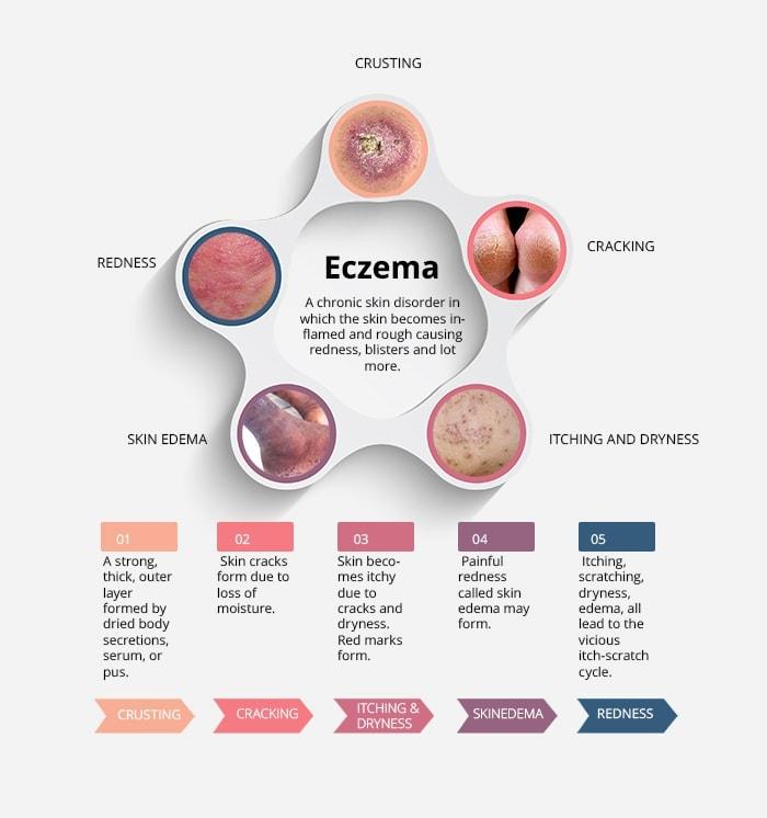 CBD for Eczema